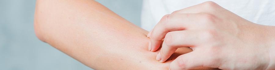Žihľavka – častý kožný problém nielen u detí